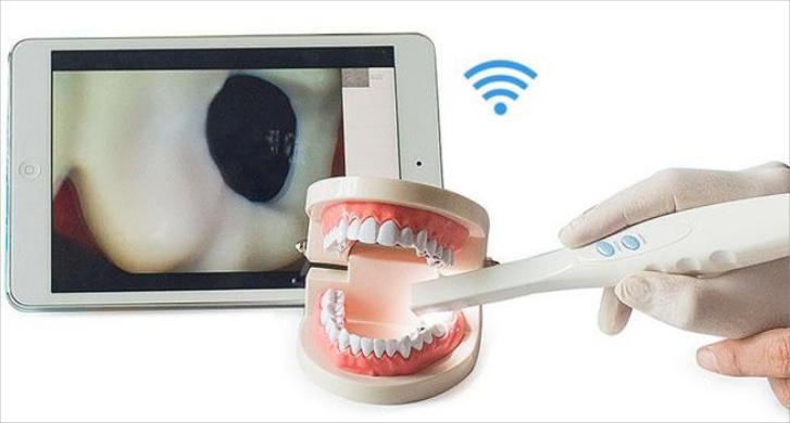 Intra-Oral-Camera