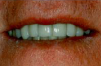 smile-makeovers-after