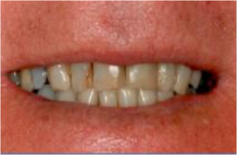 smile-makeovers-before